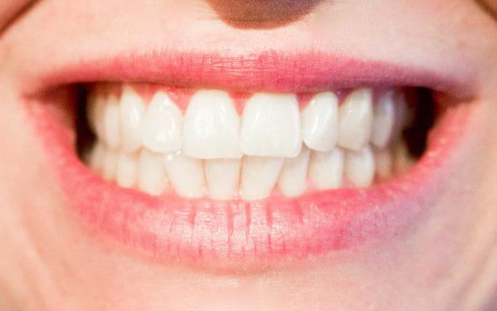 Imagem de sorriso - Plano odontológico cobre implante?